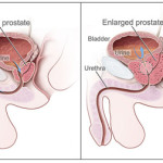 Difference Between BPH and Prostate Cancer