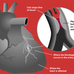 Difference Between Heart Attack and Stroke