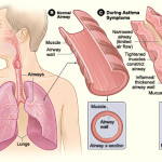 Difference Between Asthma and COPD