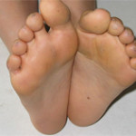 Difference Between Podiatrist and Chiropodist