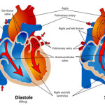 Difference Between Aortic Valve and Mitral Valve
