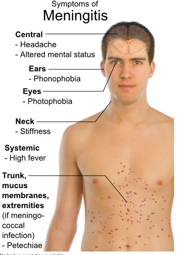 Symptoms of meningitis