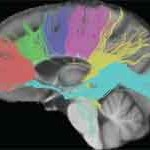 Difference Between Grey and White Matter