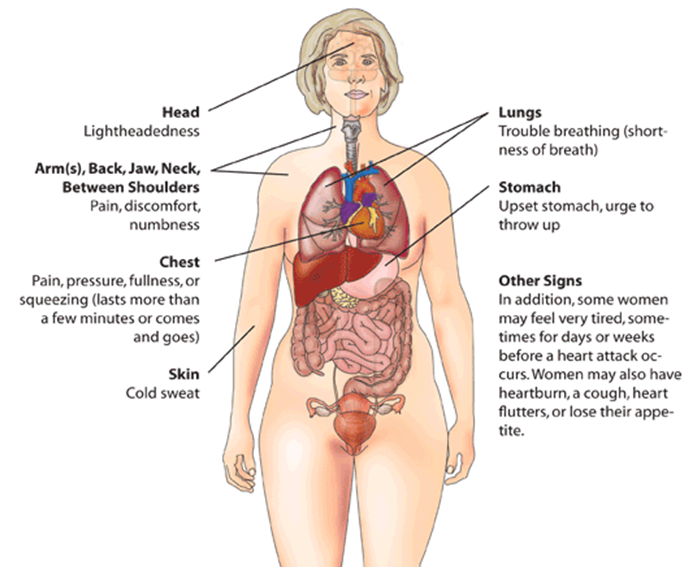 Differences between anxiety and heart attack difference between heart attack myocardial infarction warning signs in women ccuart Images