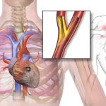 Differences Between Myocardial Ischemia and Myocardial Infarction