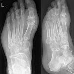 Difference Between Gout and Bunion