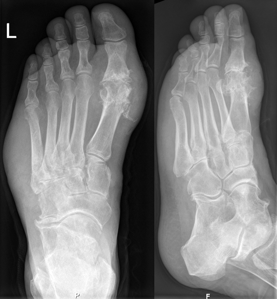 Gout in X-ray of left foot