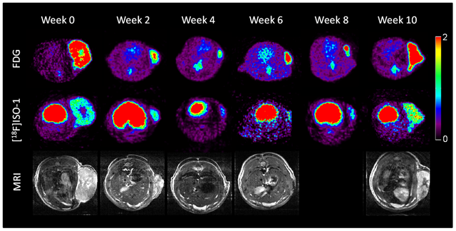 PET_scans_of_brain_tumor_using_Sigma-2_Ligands