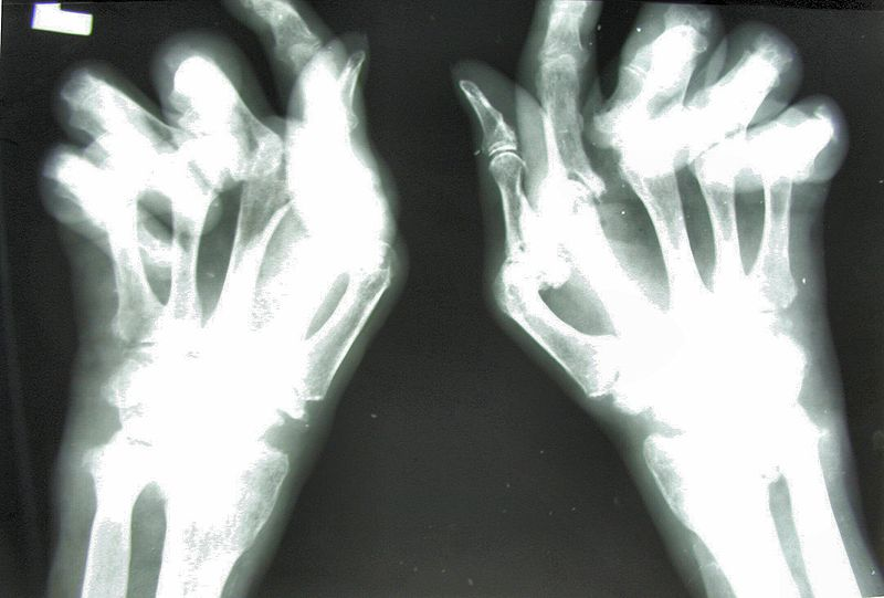 Rheumatoid arthritis - X-ray image of the hand