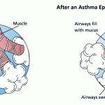 Difference between asthma and emphysema