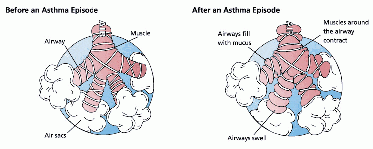 how are asthma x ray