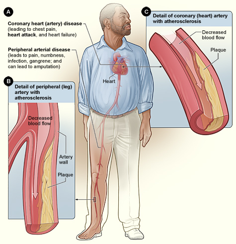 difference between arteriosclerosis and atherosclerosis, Human Body