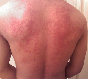 How to Treat a Fire Ant Sting: 14 Steps (with Pictures ...