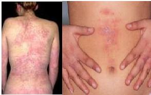 difference-between-rashes-hives-and-eczema