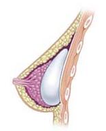 Subglandular_breast_implants
