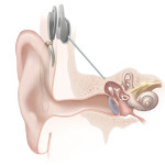 Difference between BAHA and cochlear implant