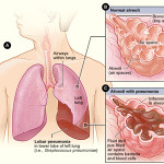 What is the difference between mild, moderate and severe pneumonia
