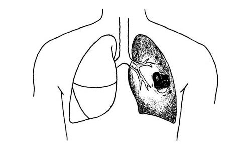 pneumonia and lung abscess