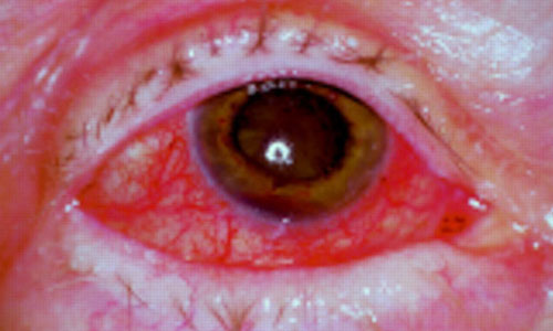 scleritis and episcleritis