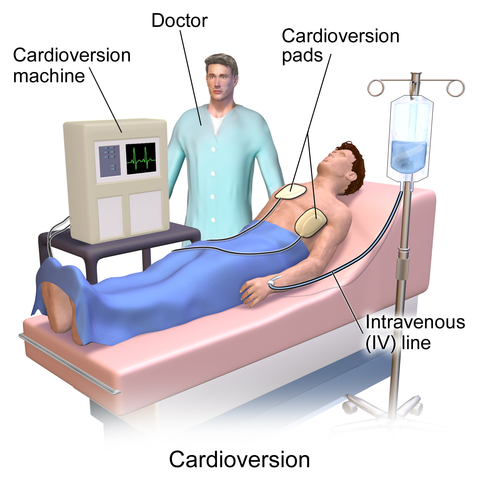 480px-Blausen_0169_Cardioversion