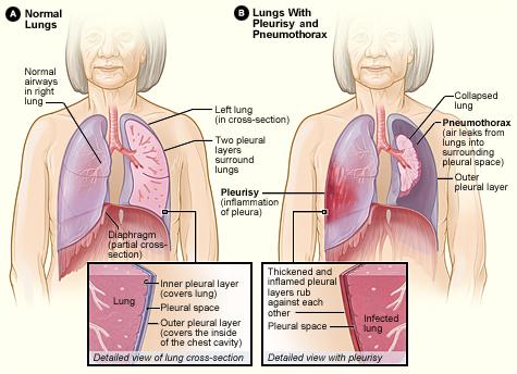 Pleurisy_and_pneumothorax
