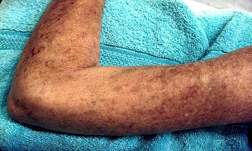 640px-Left_Arm_Scleroderma_Patient