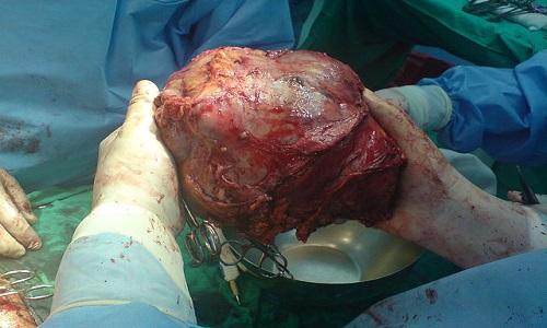 640px-Big_Liver_Tumor