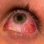 Difference Between Pink eye And Stye