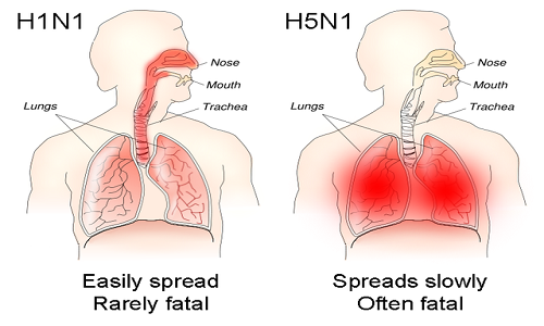 640px-H1N1_versus_H5N1_pathology