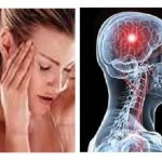 Difference Between Migraine And Stroke