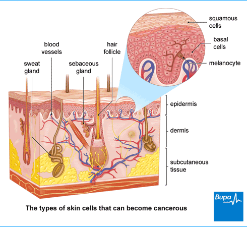 Take care of your skin! What you need to know about skin cancer (carcinomas and melanomas)-2
