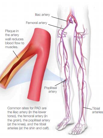 unraveling the interpretations of Peripheral vascular disease (PVD) and Peripheral arterial disease (PAD)