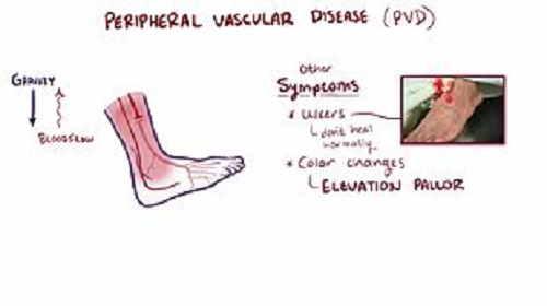 Undefined concepts unraveling the interpretations of Peripheral vascular disease (PVD) and Peripheral arterial disease (PAD)