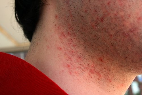 Difference Between Razor Burn And Herpes Difference Between
