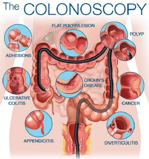 Difference between Sigmoidoscopy and Colonoscopy-1