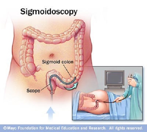 Difference between Sigmoidoscopy and Colonoscopy