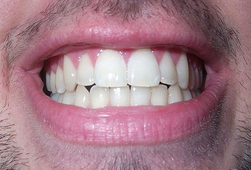 The difference between Tooth and Teeth