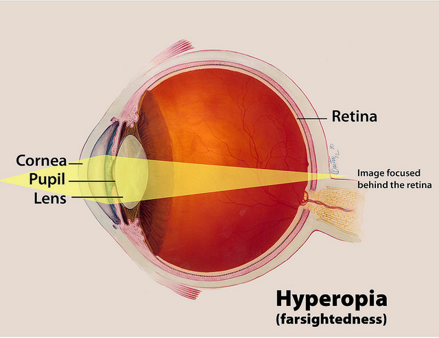 Difference between Hyperopia and Presbyopia1