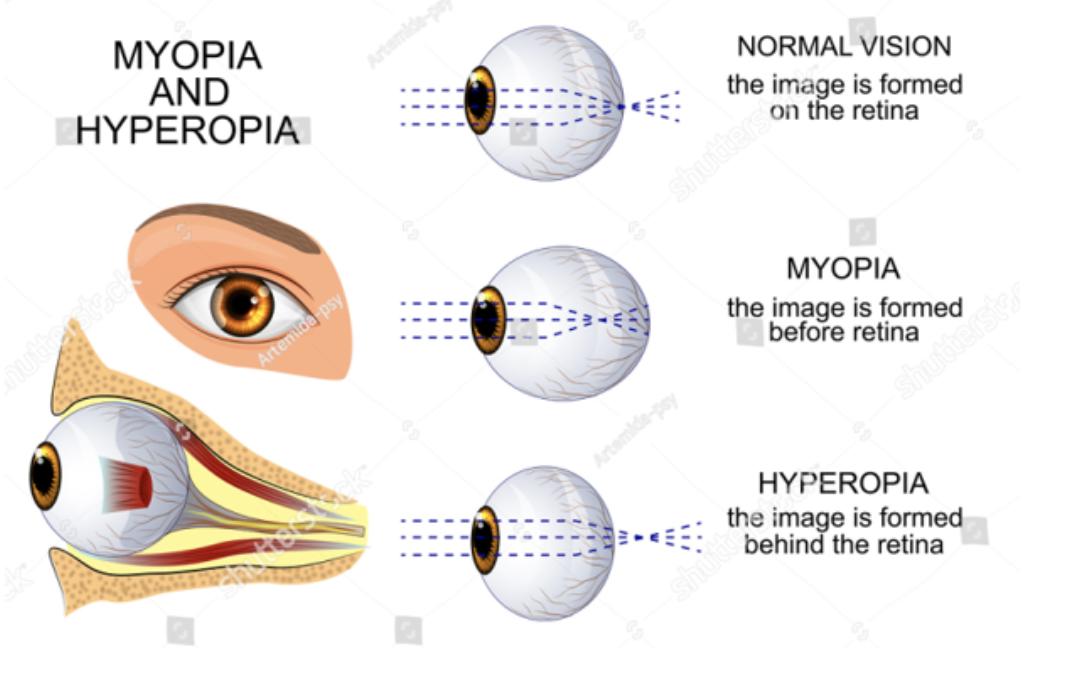 Difference between Myopia and Hypermetropia.