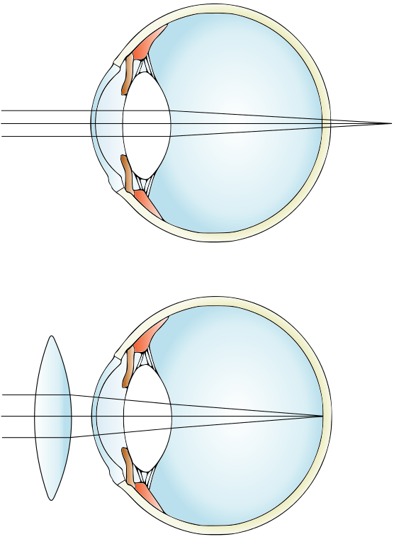 Difference between Myopia and Hypermetropia