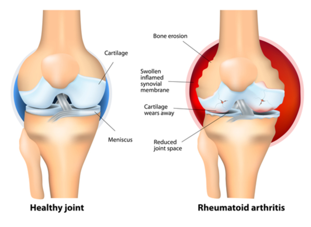 Difference Between Arthritis and Bursitis