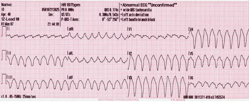 Difference Between Ventricular Tachycardia (Vtach) and Ventricular Fibrillation (Vfib)