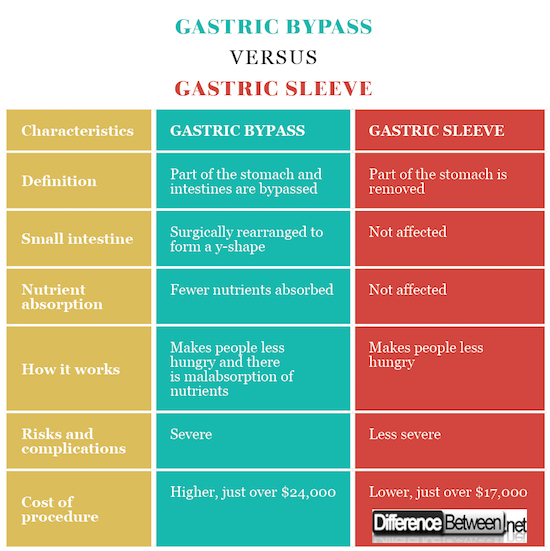 Gastric Bypass VERSUS Gastric Sleeve