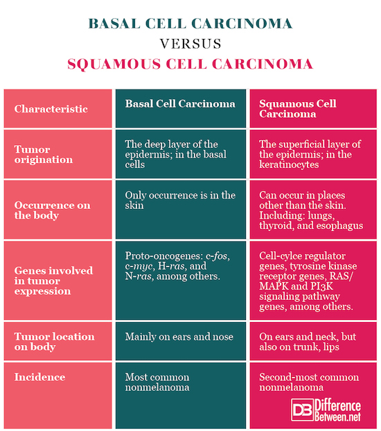 Basal Cell Carcinoma VERSUS Squamous Cell Carcinoma