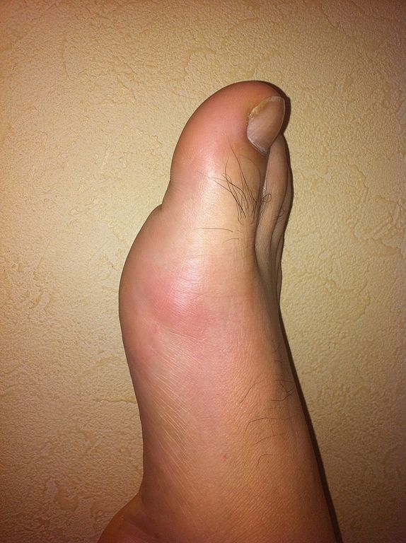 Difference Between Inflammation and Swelling