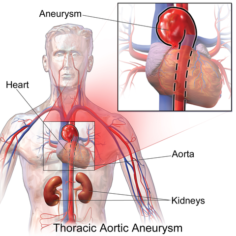 Difference Between Blood Clot and Aneurysm