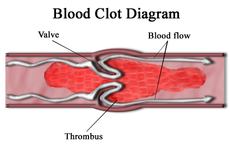 Difference Between Blood Clots and Tissue