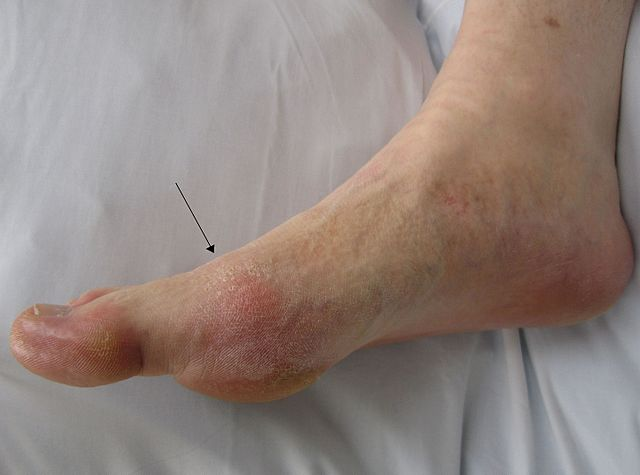 Difference between Gout and Plantar Fasciitis