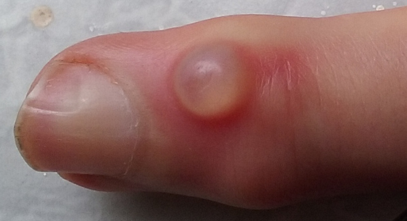 Difference Between Wart and Cyst
