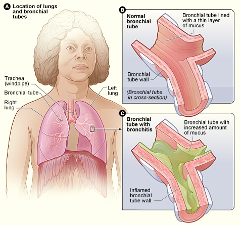 Difference Between Bronchitis and Croup